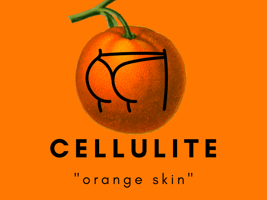 THE CELLULITE – OVERCOMING EVIL OR MARK FOR LIFE?